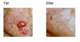 hva er hudkreft