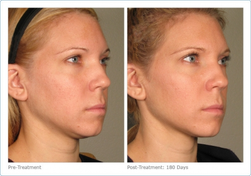 56901-ultherapy_full_face_2_10.jpg