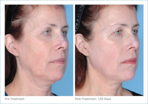 64953-ultherapy_full_face_2_13.jpg