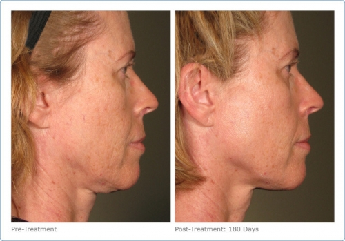 66196-ultherapy_full_face_2_11.jpg