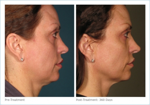 90705-ultherapy_full_face_2_2.jpg
