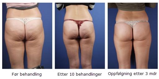 hvordan fjerne cellulitter